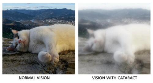 Cataract comparison images