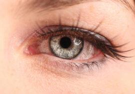 Example of pink eye